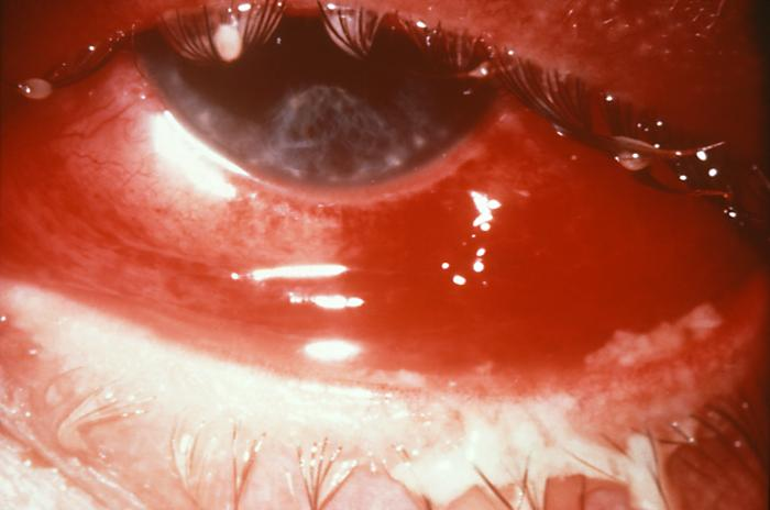 Gonorrhea infection of the eye