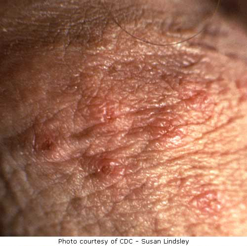 close up herpes picture on male