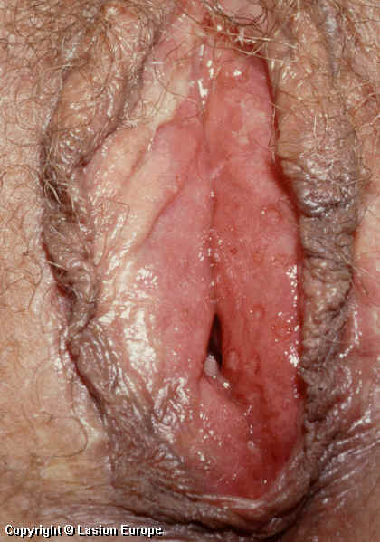 What causes lumps on the vagina