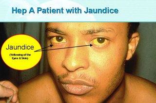 Jaundice Symptoms of the Eyes